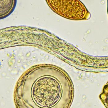 Image result for Tips for Parasite Prevention